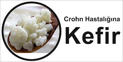 kefir-crohn
