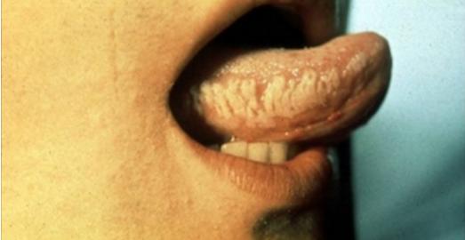 Ces symptômes choquants peuvent indiquer que vous êtes porteur du VIH… Faites un test !