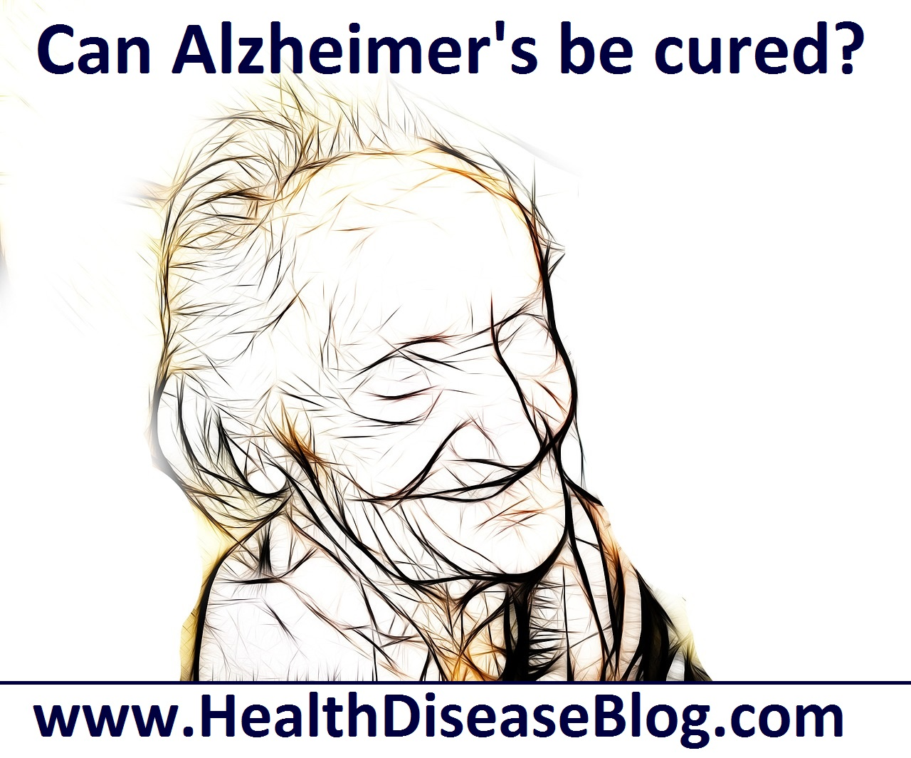can alzheimer s disease be cured