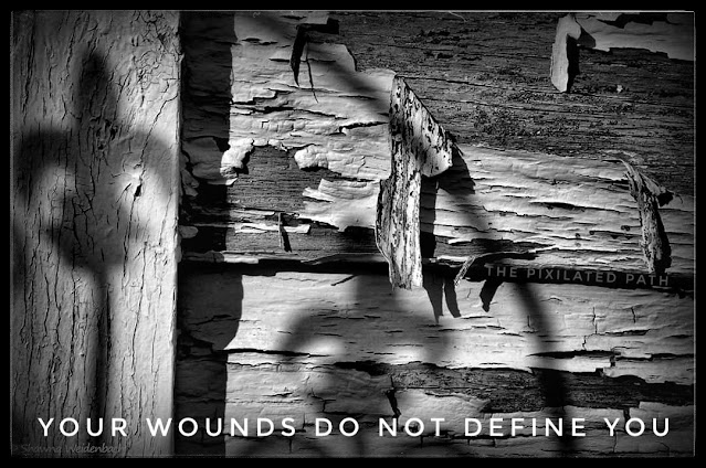 Your Wounds Do Not Define You