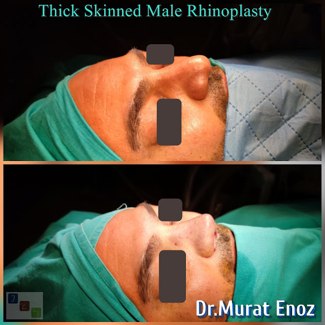 thick skinned rhinoplasty for men - oily thick skinned nose job