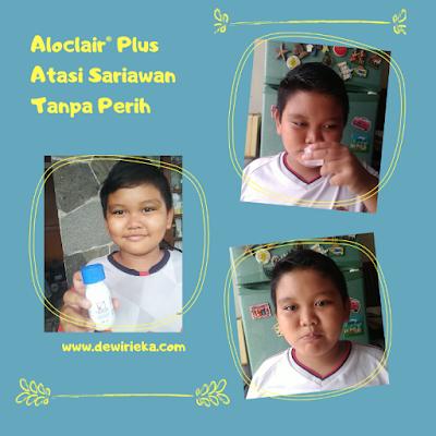 Aloclair® Plus atasi sariawan tanpa perih