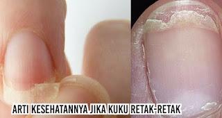 Arti kesehatannya jika Kuku retak-retak
