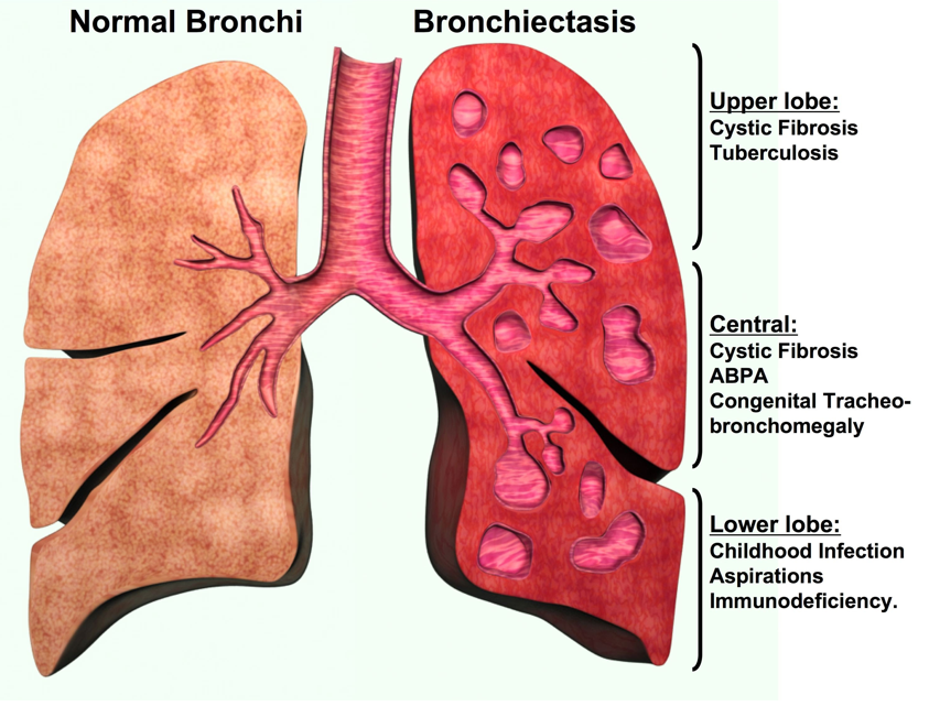Prepare For Medical Exams Bronchiectasis Case Study