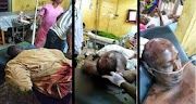 Graphic Photos: Thugs Beat PDP Hon. Rasak Momoh to Coma in Edo state