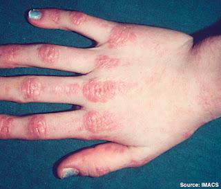 Nguyên nhân đau khớp ngón tay và cách điều trị