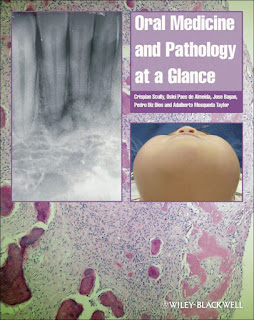 Oral Medicine and Pathology at a Glance