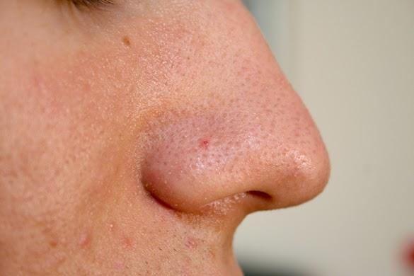 Cara Menghilangkan Komedo dengan Alami pada Hidung atau Wajah