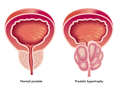 Prostate Cancer Options And Hormone Treatment