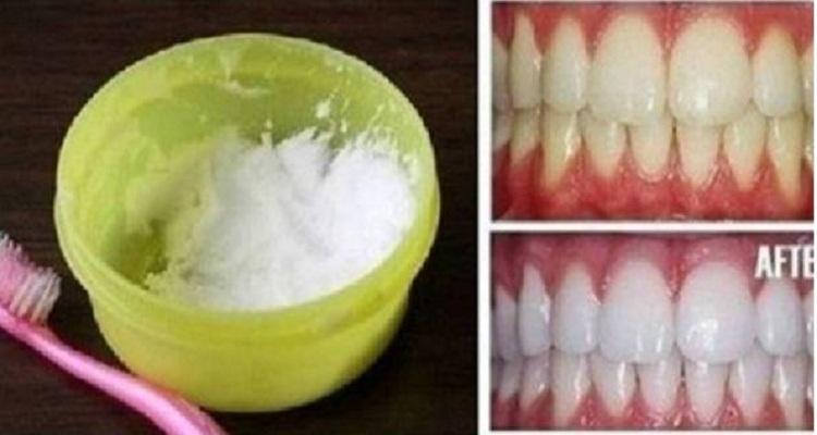 أسنان بيضاء في 3 دقائق.. وصفة مذهلة جربوها و لن تندموا