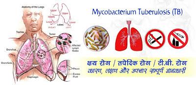 क्षय रोग के लक्षण कारण और उपचार Tuberculosis Disease in Hindi