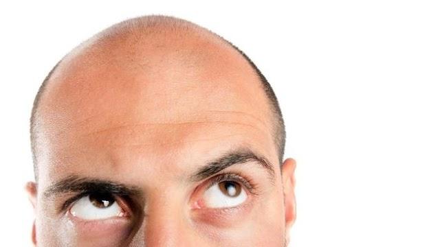 Ketahui Dulu Hal Ini Sebelum Coba Transplantasi Rambut