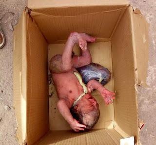 Photo: Newborn baby found abandoned inside a carton in Kaduna