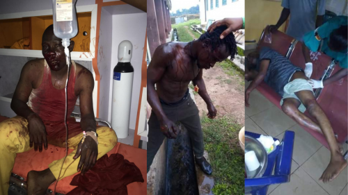 Three Injured As Armed Thugs Attack PDP Governorship Candidate's Convoy in Ondo State. PHOTOS