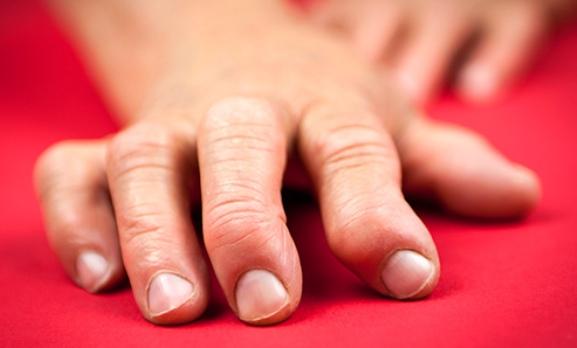 Rheumatoid Arthritis in Hand
