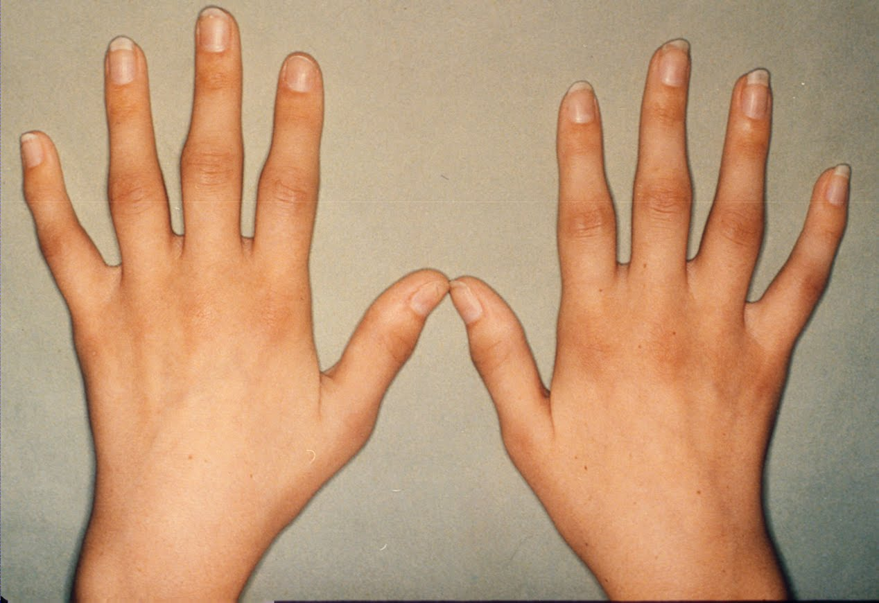 HEALTH FROM TRUSTED SOURCES: Rheumatoid Arthritis  HEALTH FROM TRU...