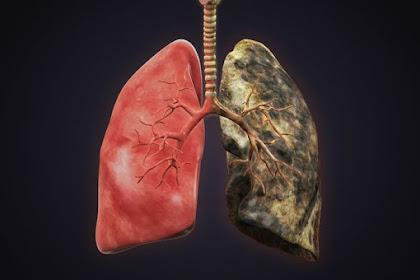 Tips Mudah Menjaga Paru-paru Sehat Untuk Perokok Aktif