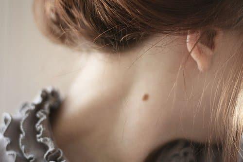 10 Letak Tahi Lalat di Tubuh Ini Dipercaya Bisa Membawa Keberuntungan