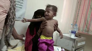 Dampak Pemberontakan Syiah Houthi: Yaman Butuh Banyak Bantuan Kemanusiaan