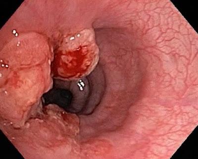 hình ảnh nội soi ung thư dạ dày