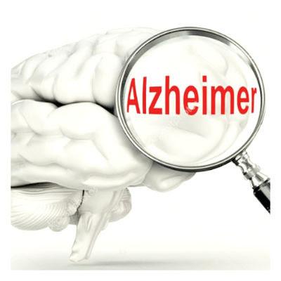 Mira Dos nuevos Medicamentos ineficaces contra el Alzheimer