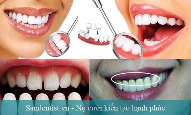 Ẩn họa từ bọc răng sứ kém chất lượng