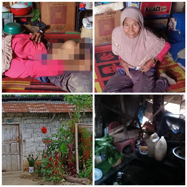 Yusnidar Janda Miskin Warga Kerinci Alami Hernia Puluhan Tahun Belum di Operasi Medis