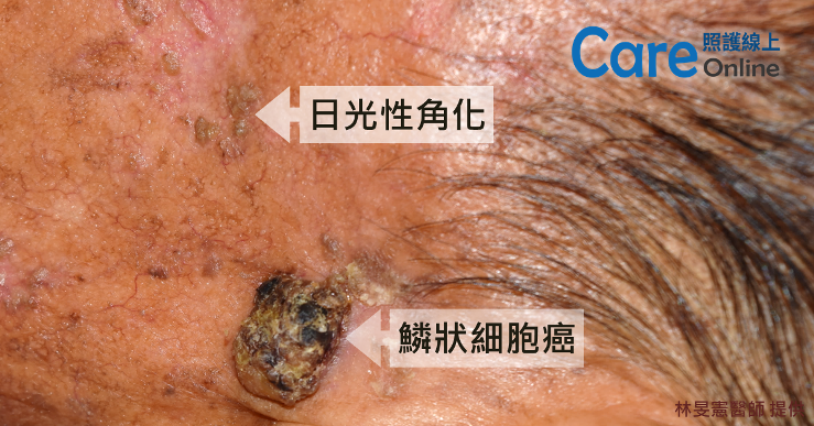 皮膚鱗狀細胞癌的像片
