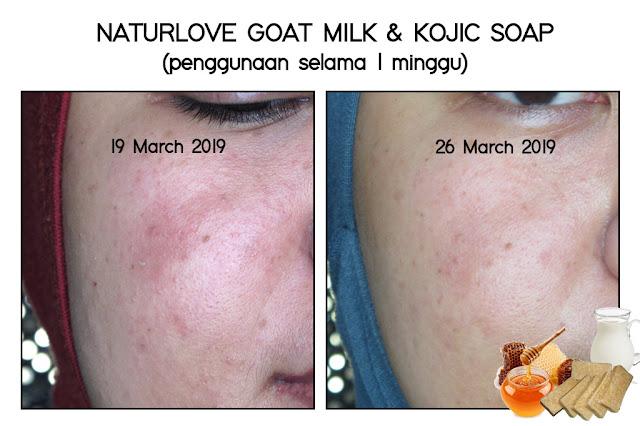 Hasil penggunaan sabun Naturlove untuk mengatasi iritasi