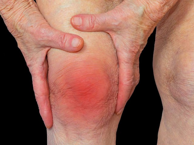 Arthritis - Highly effective Pure Cures Revealed