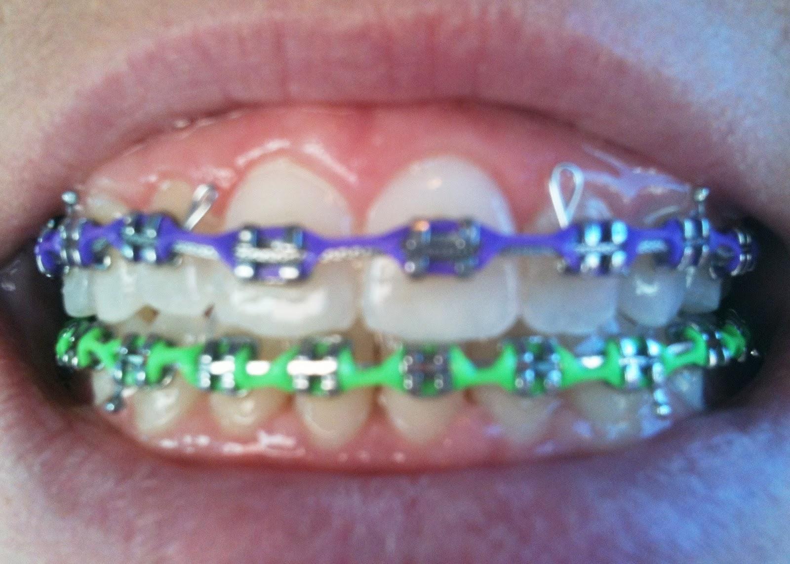 5 Braces Rubber Color Combination