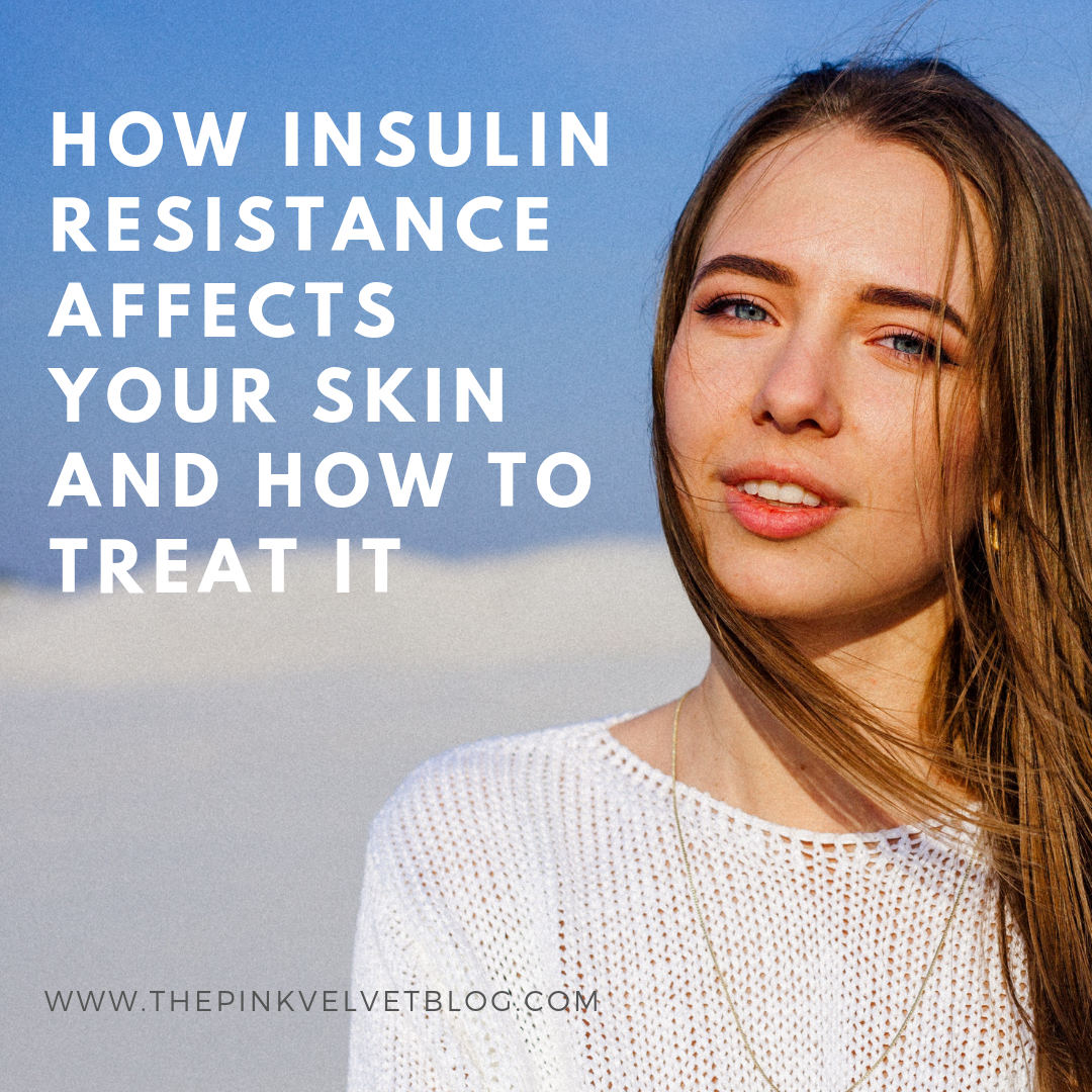 How Insulin Resistance Affects Your Skin and How to Treat It