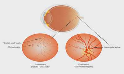 52d02f8cd112b Diabetes, visão embaçada