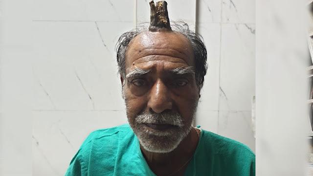 जब इंसान के सिर पर निकल आया 'सींग' - newsonfloor.com