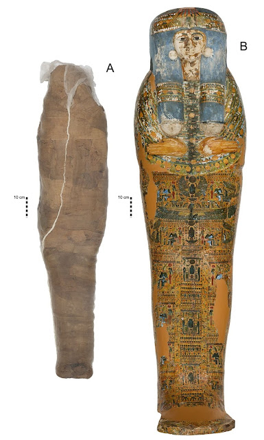 """New study uncovers rare """"mud carapace"""" mortuary treatment of Egyptian mummy"""