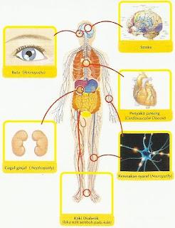 Penyakit Komplikasi
