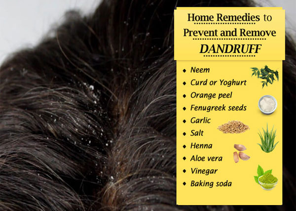 Home remedies for dandruff:  Dandruff treatment shampoo fast removal
