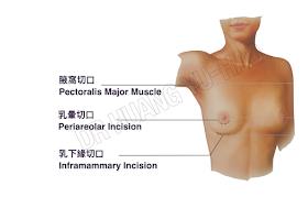 隆乳手術切口位置比較
