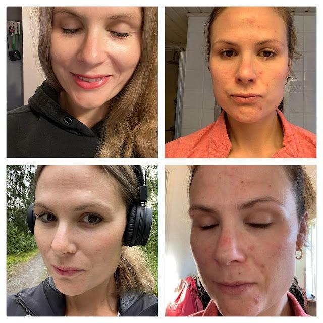 Revitaliser le visage naturellement et rapidement grâce à ces conseils