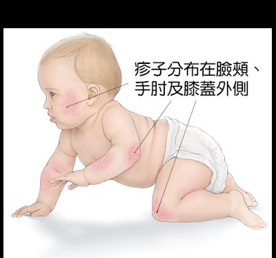 寶寶的四肢外側(伸展處)特別容易有疹子
