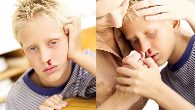 cara mengatasi mimisan pada anak