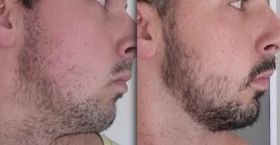 Pertumbuhan Brewok 1-2 Bulan