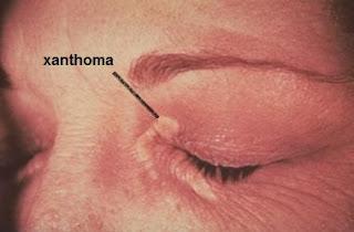 التشمع الصفراوي الأولي (Primary biliary cirrhosis)