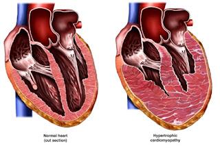 Obat Tradisional Hypertrophic Cardiomyopathy