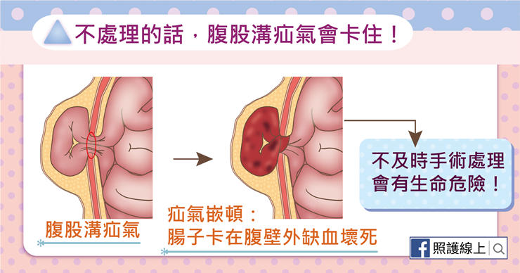 「疝氣嵌頓」可能導致器官缺血壞死,危及生命-照護線上