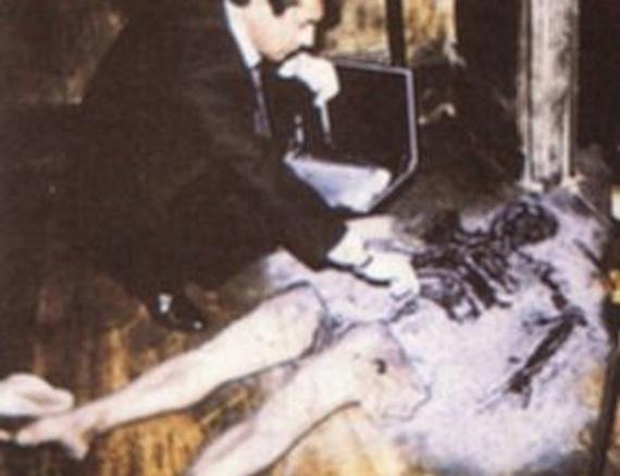 Misteri Terbakarnya Tubuh Manusia Secara Spontan