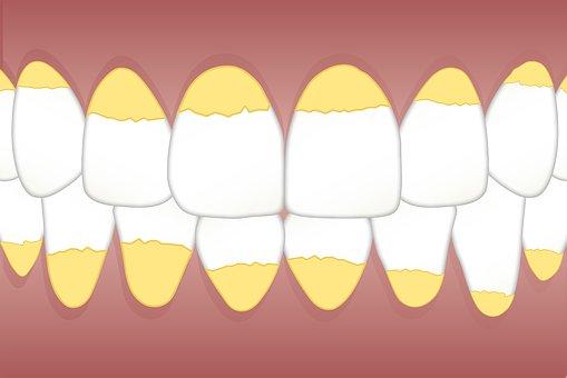 Cara Menghilangkan Karang Gigi dengan Baking Soda + Pasta Gigi