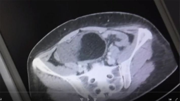 News, World, London, Woman, Doctor, hospital, Delivery Pain, Doctors found a Big cyst on Woman's Ovary