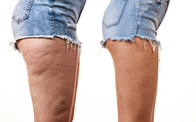 How To Get Rid Of Cellulite On Thighs?
