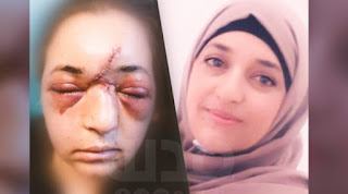 muslimah palestina ini di aniaya